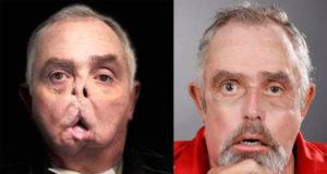 Médicos canadienses realizan el primer trasplante de rostro