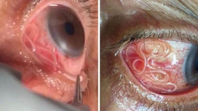 Fue al médico por molestias oculares y le extrajeron un gusano de 15 centímetros