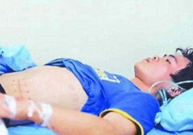 Vendió su riñón por un iPhone y ahora estará en diálisis toda su vida